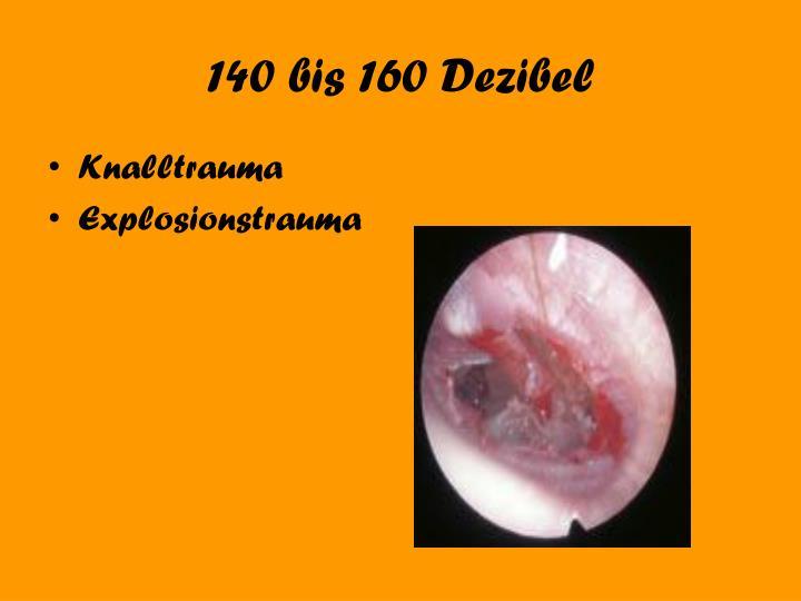 140 bis 160 Dezibel