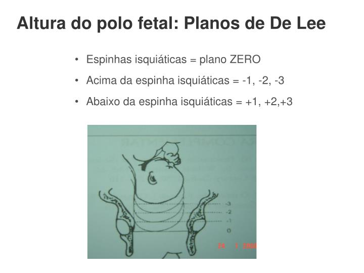 Altura do polo fetal: Planos de De Lee