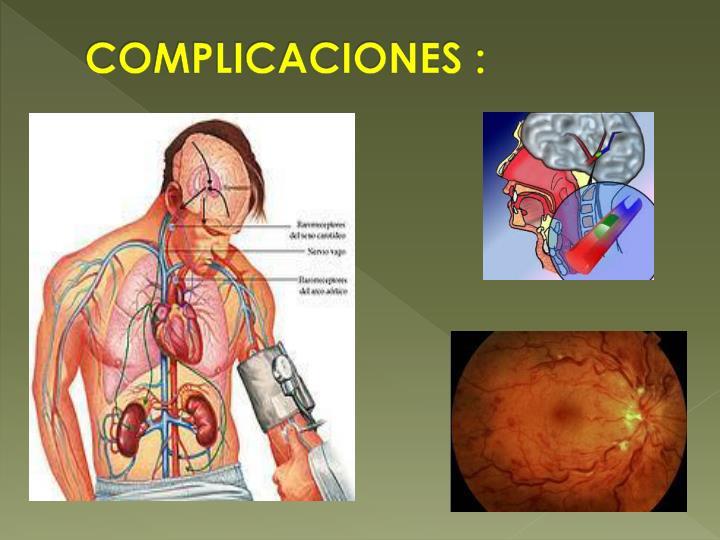 COMPLICACIONES :