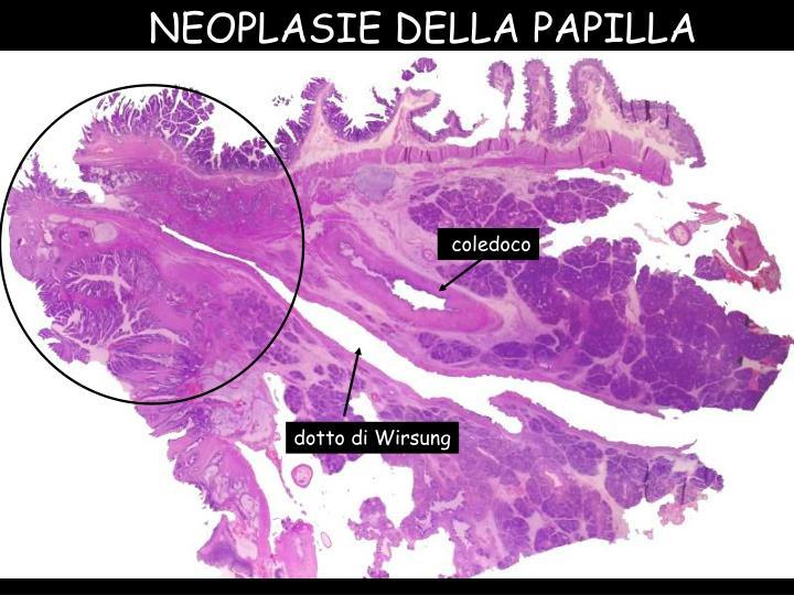 NEOPLASIE DELLA PAPILLA