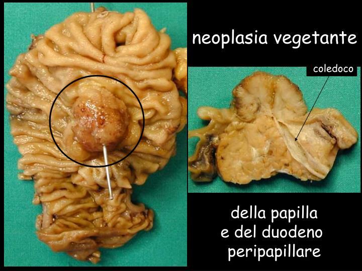 neoplasia vegetante