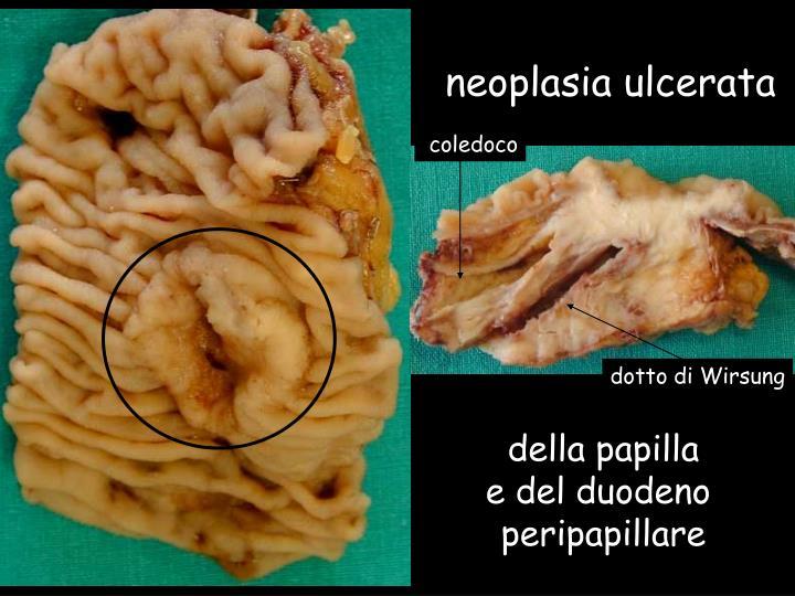 neoplasia ulcerata