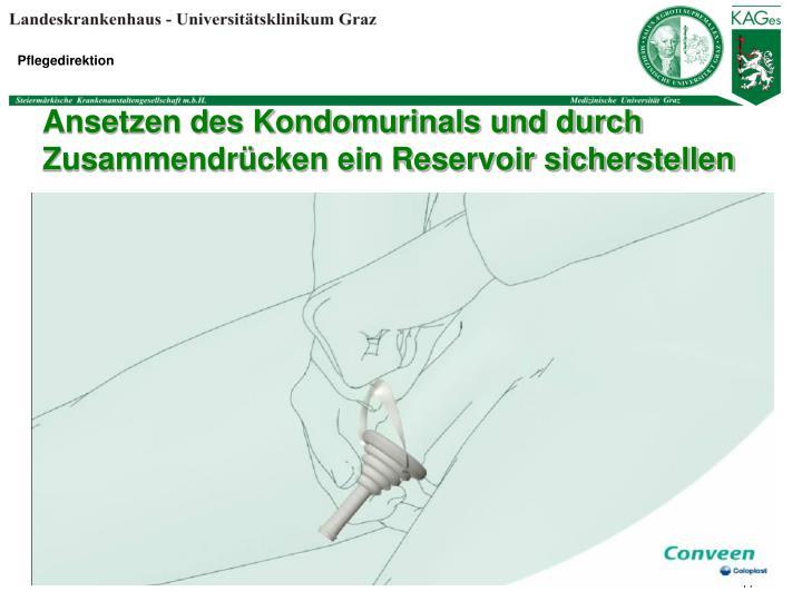 Ansetzen des Kondomurinals und durch  Zusammendrücken ein Reservoir sicherstellen