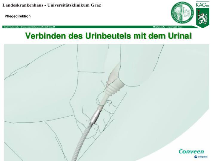 Verbinden des Urinbeutels mit dem Urinal