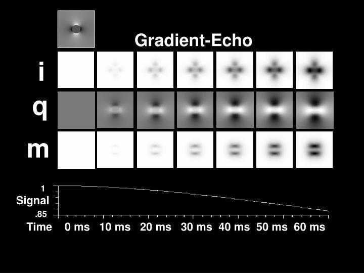 Gradient-Echo