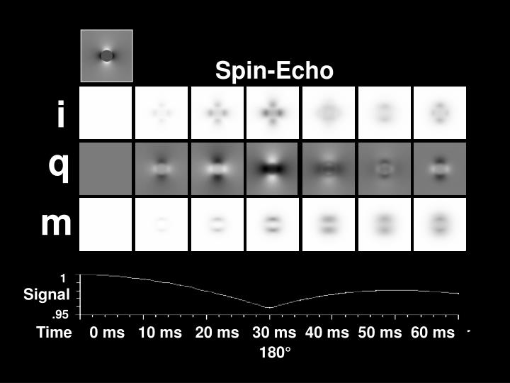 Spin-Echo