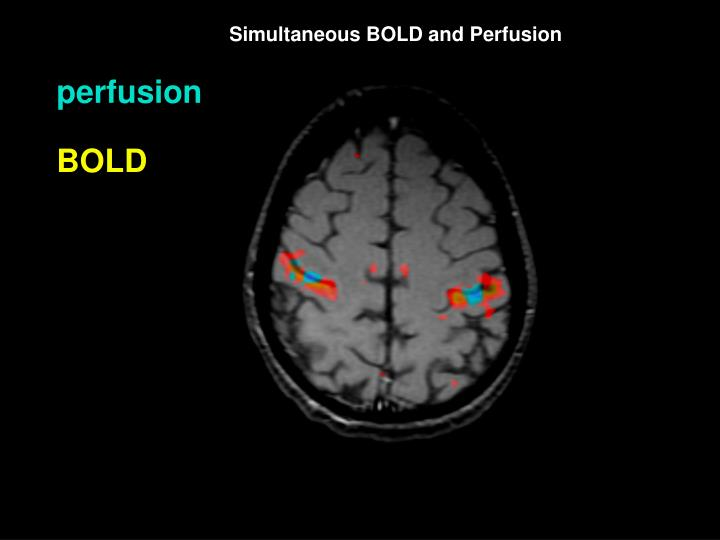Simultaneous BOLD and Perfusion