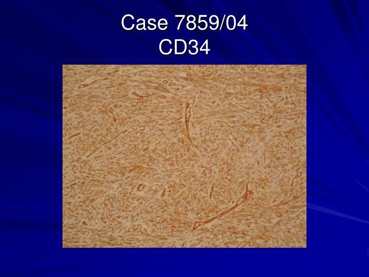 Case 7859/04