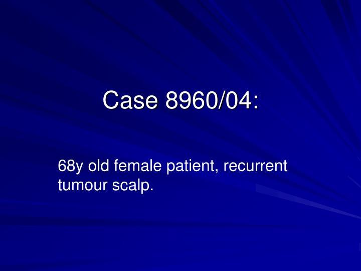 Case 8960/04: