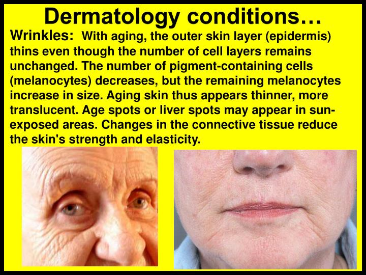 Dermatology conditions…