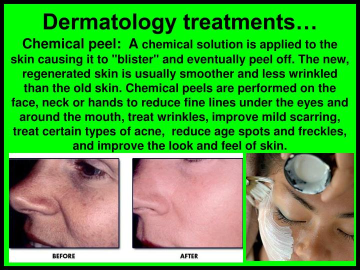Dermatology treatments…