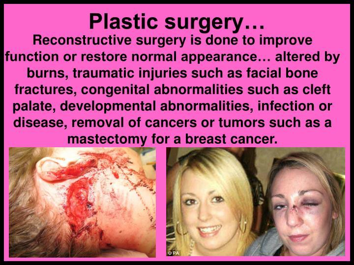 Plastic surgery…