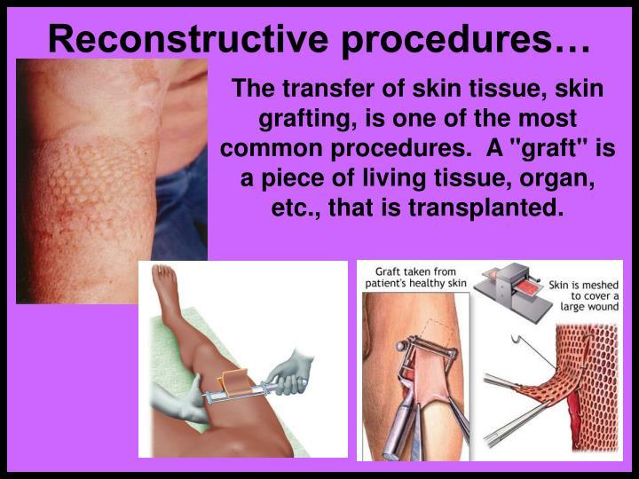 Reconstructive procedures…