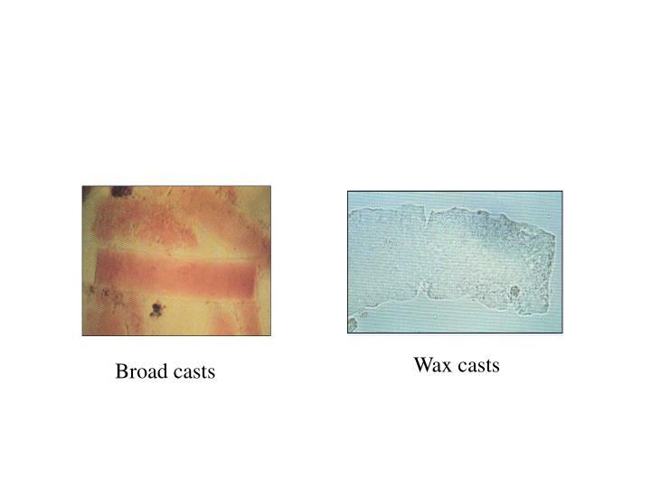 Wax casts