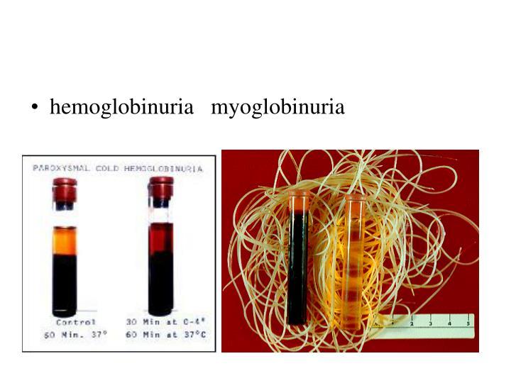 hemoglobinuria   myoglobinuria