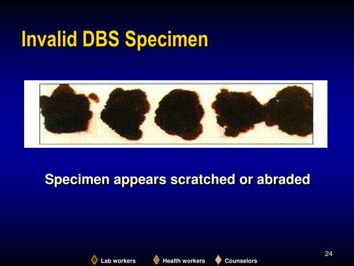 Invalid DBS Specimen