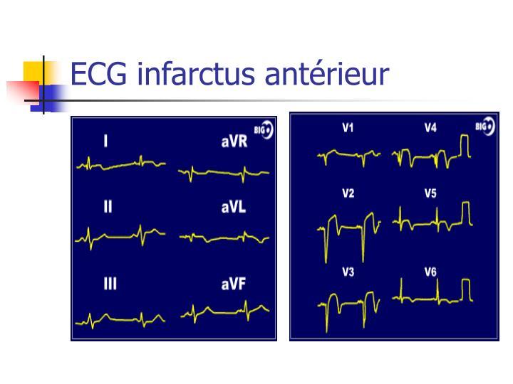 ECG infarctus antérieur