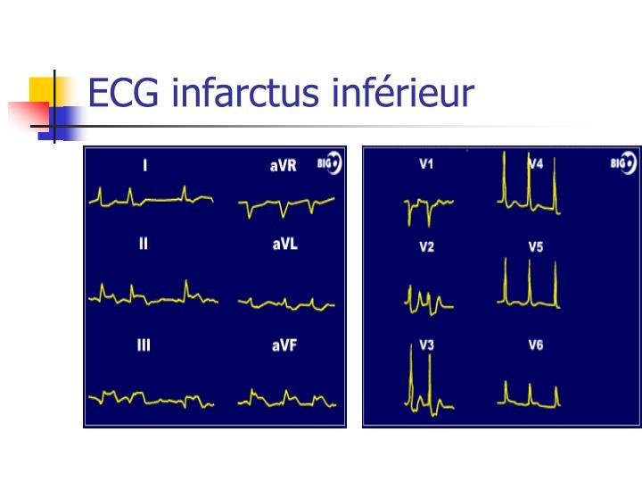 ECG infarctus inférieur
