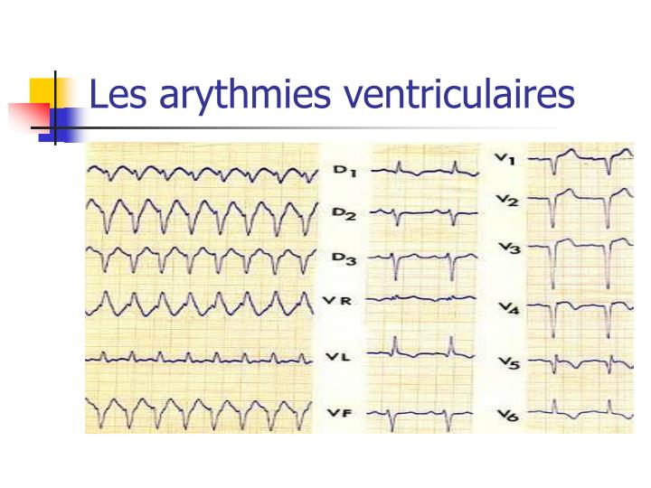 Les arythmies ventriculaires