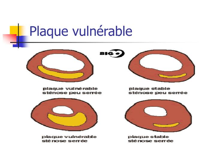 Plaque vuln rable