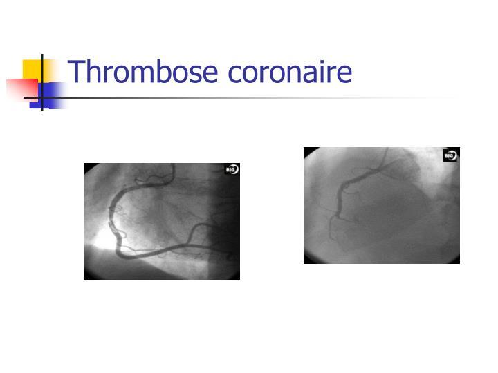Thrombose coronaire