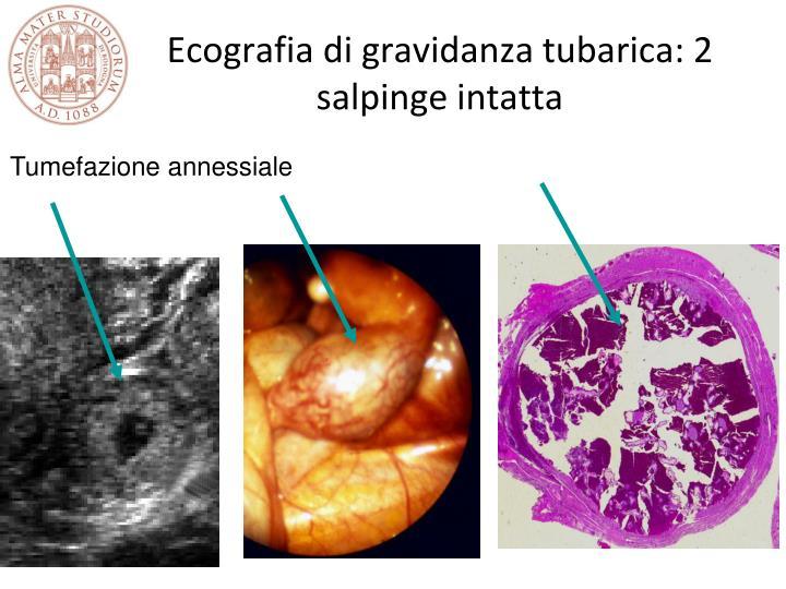 Ecografia di gravidanza tubarica: 2