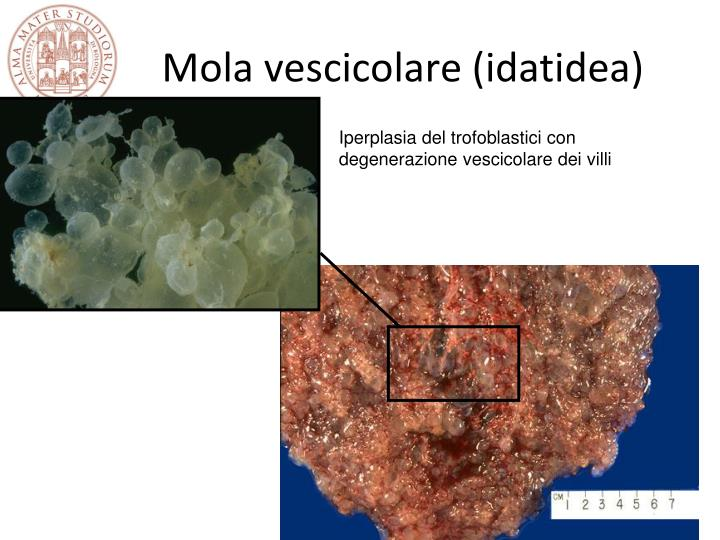Mola vescicolare (idatidea)