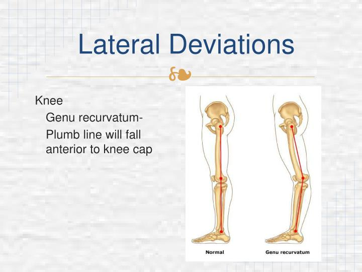 Lateral Deviations