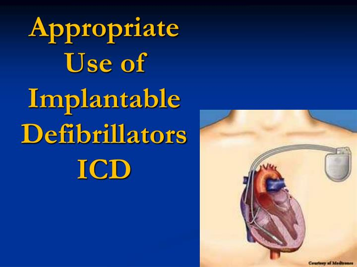 Appropriate Use of Implantable Defibrillators ICD