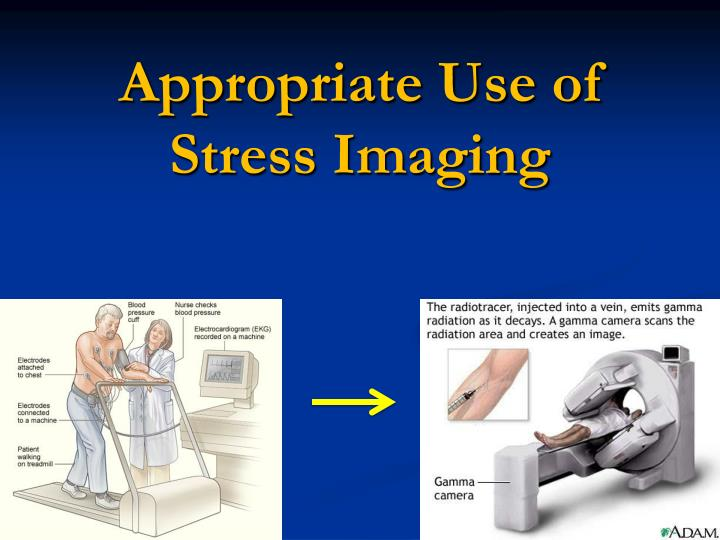 Appropriate Use of Stress Imaging
