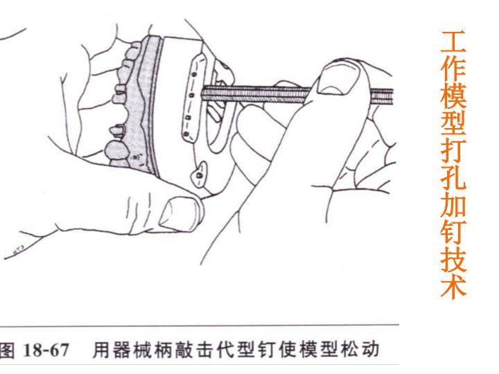 工作模型打孔加钉技术