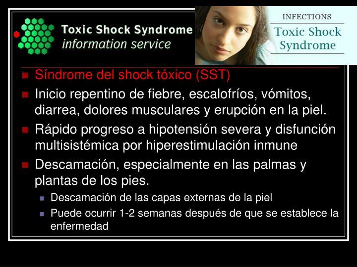 Síndrome del shock tóxico (SST)