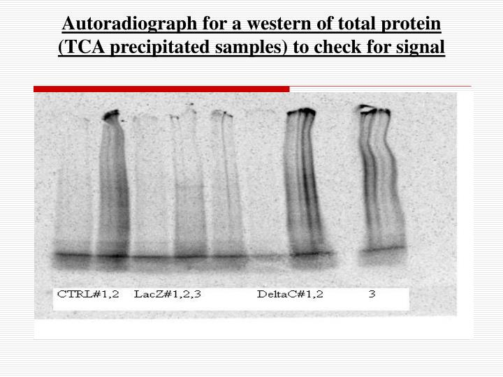 Autoradiograph for a western of total protein (TCA precipitated samples) to check for signal