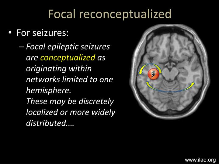 Ppt Seizure Semiology And Classification Dr Tim Wehner