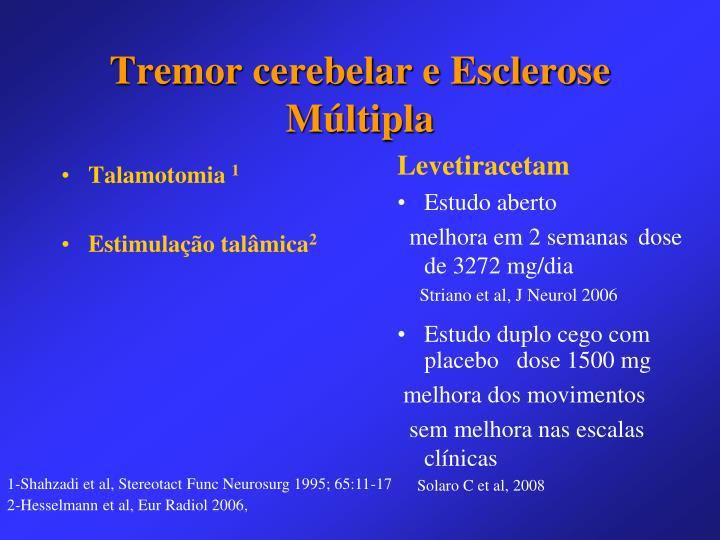 Talamotomia
