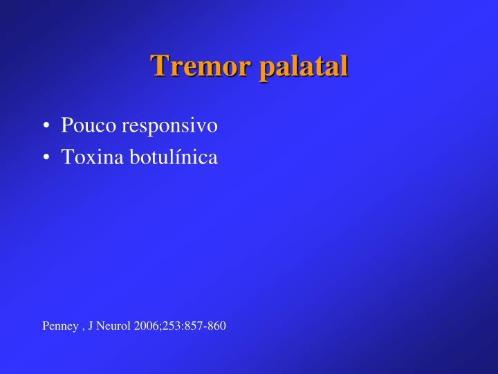 Tremor palatal