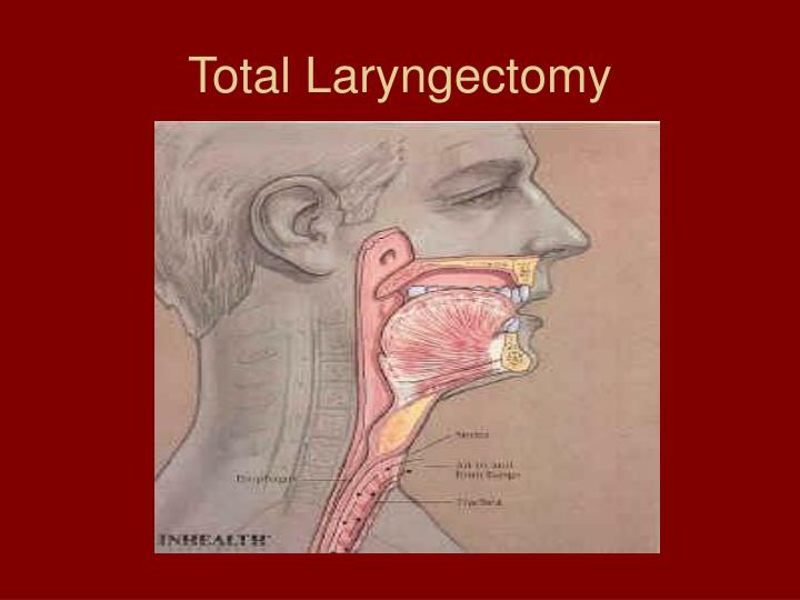 Total Laryngectomy