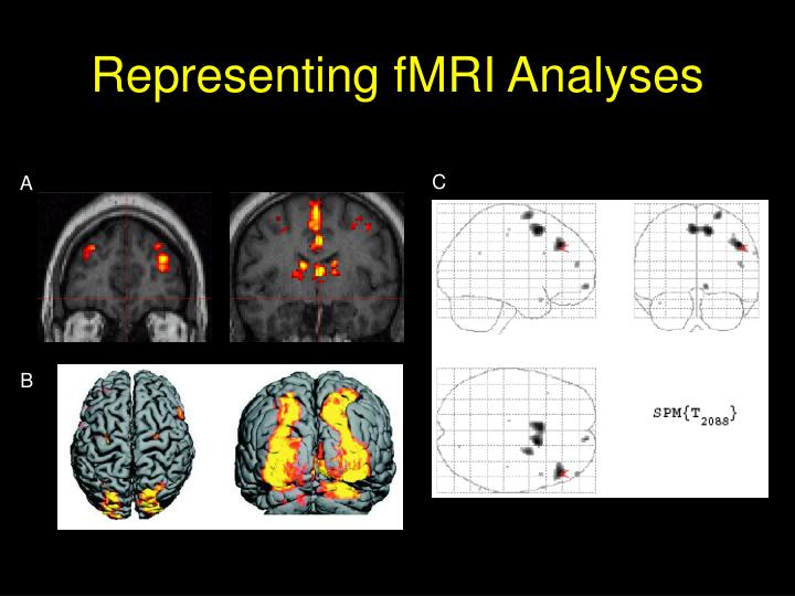 Representing fMRI Analyses