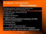 the appendix acute appendicitis clinical features i