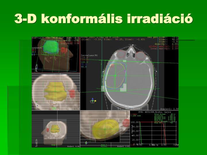 3-D konformális irradiáció