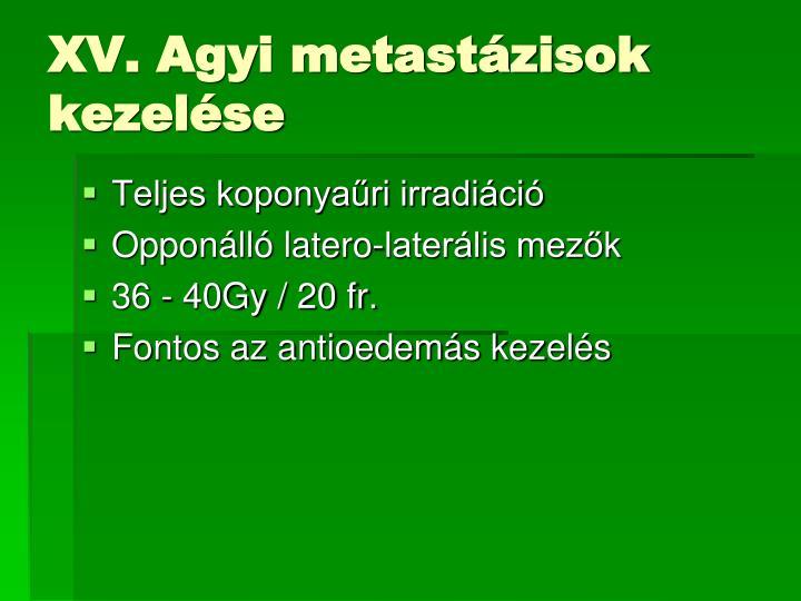 XV. Agyi metastázisok kezelése