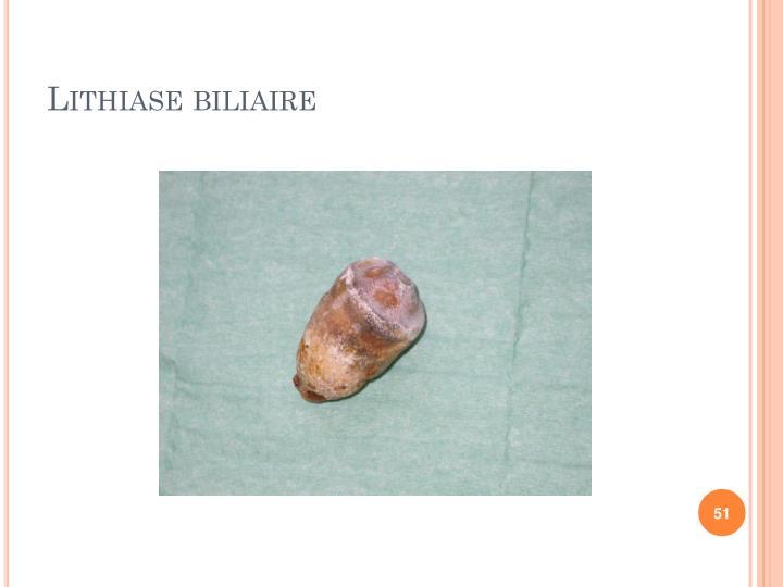 Lithiase biliaire