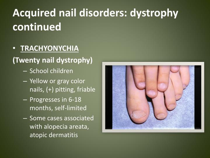 Acquired nail disorders: dystrophy