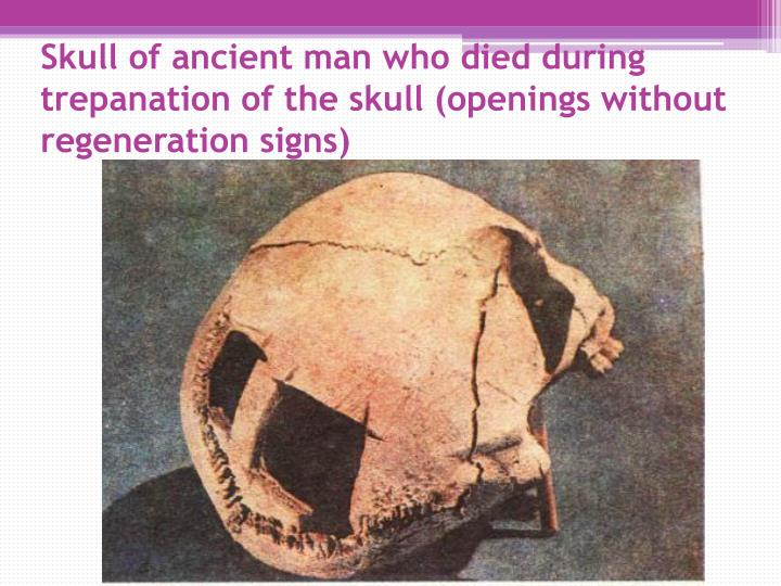 Skull of ancient man who died during trepanation of the skull (openings without regeneration signs)