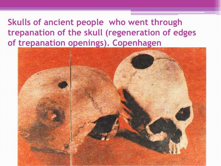 Skulls of ancient people  who went through trepanation of the skull (regeneration of edges  of