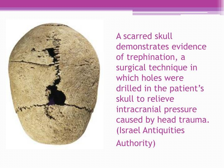 A scarred skull demonstrates evidence of trephination, a surgical technique in which holes were drilled in the patient's skull to relieve intracranial pressure caused by head trauma. (Israel Antiquities Authority)
