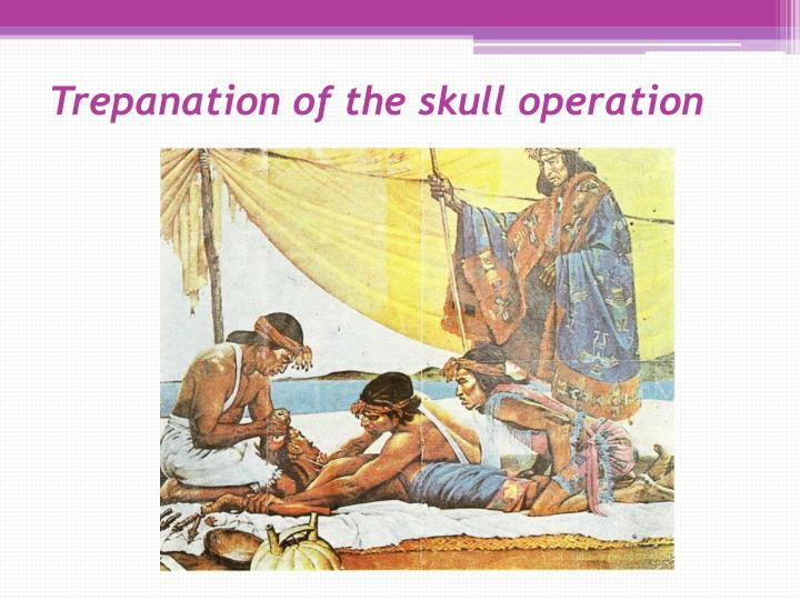 Trepanation of the skull operation