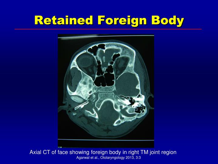 Retained Foreign Body