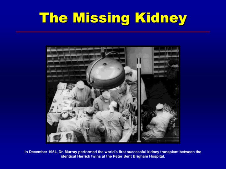 The Missing Kidney
