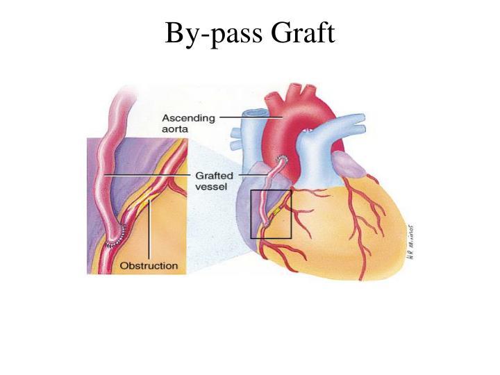 By-pass Graft